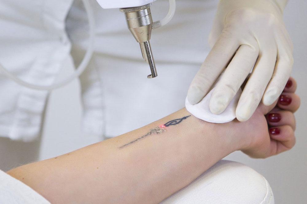corregir un tatuaje mal hecho